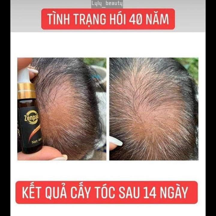 Phan hoi khach hang Dr. Hair Zenpali